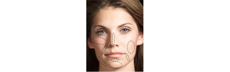 Novas técnicas para rejuvenescimento facial com naturalidade