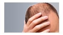 Alopécia androgenética ou calvície